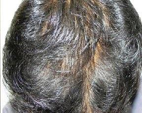 HairActiv - मतभेद, दुष्प्रभाव
