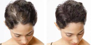 Jatayu Hair Oil - फार्मेसी में, भारत, मूल