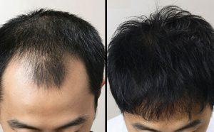 Jatayu Hair Oil - सामग्री, के फायदे, रचना